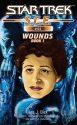 Starfleet Corps of Engineers #55: Wounds, Book 1